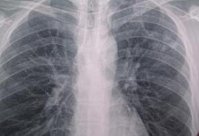 肺结核是怎样引起的 肺结核的传播途径