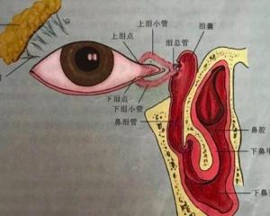 慢性泪囊炎要手术治疗吗 泪囊炎有什么表现