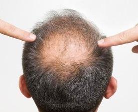 食疗对生完小孩后脱发有效吗 脱发应该使用含哪种元素的东西
