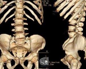 """什么是骨转移? 女性为何也成肺癌""""重灾区""""?"""